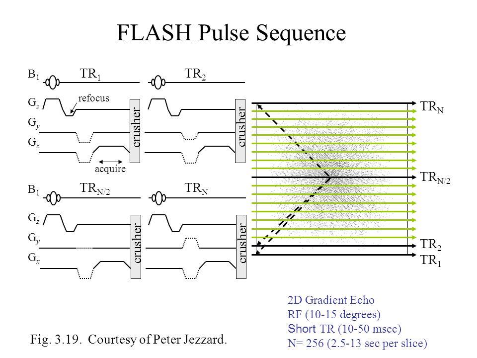 FLASH Pulse Sequence TR1 TR2 TRN crusher crusher TRN/2 TRN/2 TRN