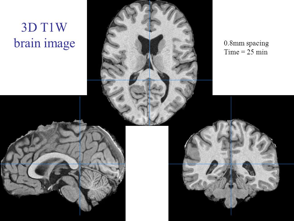 3D T1W brain image 0.8mm spacing Time = 25 min