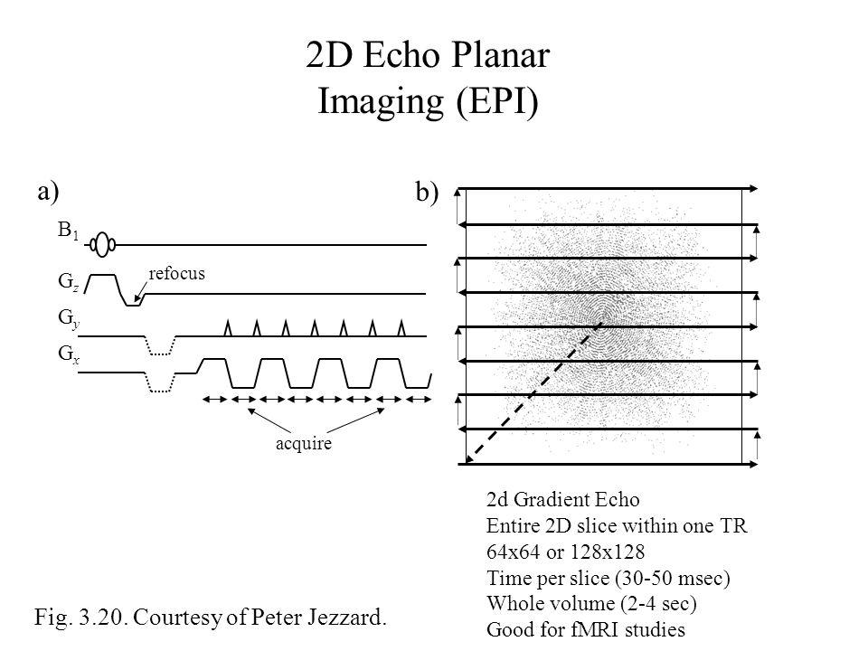2D Echo Planar Imaging (EPI)