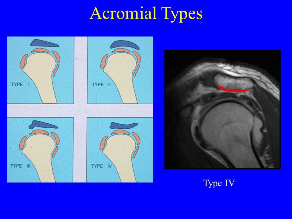Acromial Types Type IV