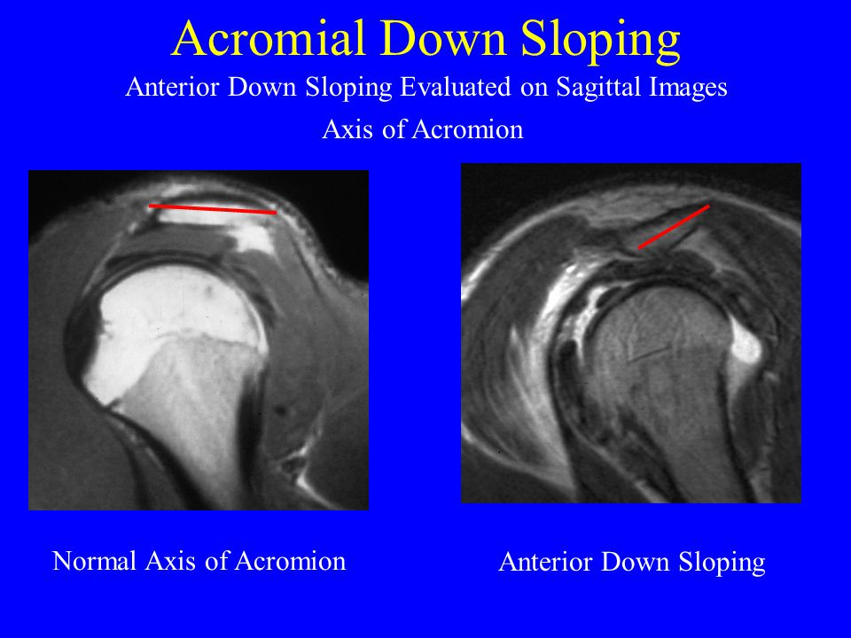 Acromial Down Sloping Anterior Down Sloping Evaluated on Sagittal Images. Axis of Acromion. Normal Axis of Acromion.