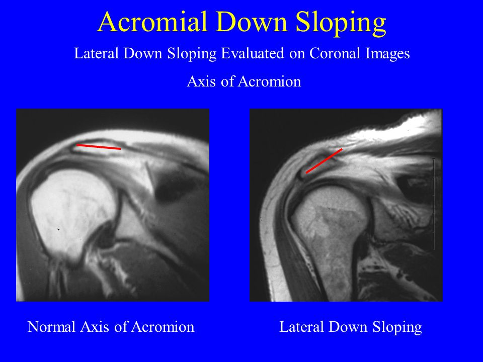 Acromial Down Sloping Lateral Down Sloping Evaluated on Coronal Images