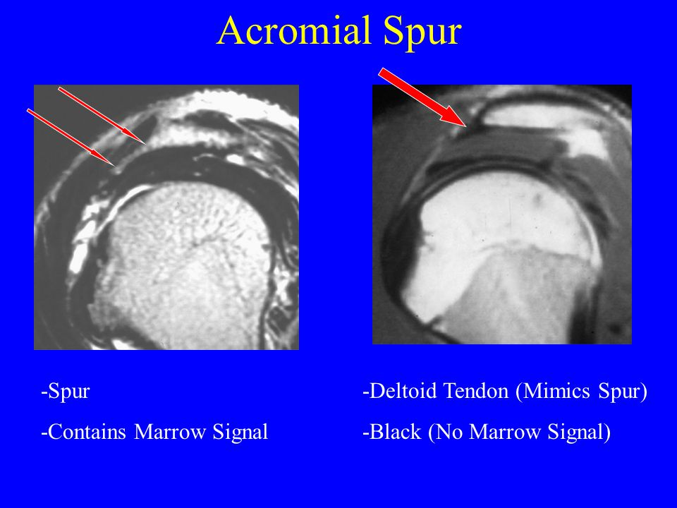 Acromial Spur -Spur -Contains Marrow Signal