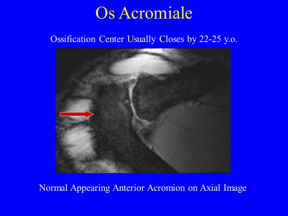 Os Acromiale Ossification Center Usually Closes by 22-25 y.o.
