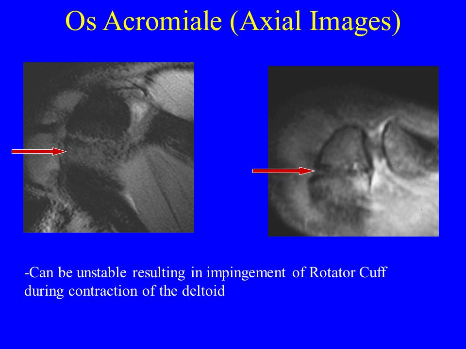 Os Acromiale (Axial Images)