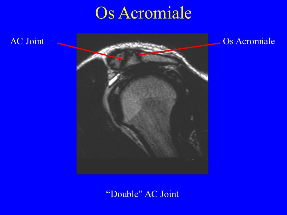 Os Acromiale AC Joint Os Acromiale Double AC Joint
