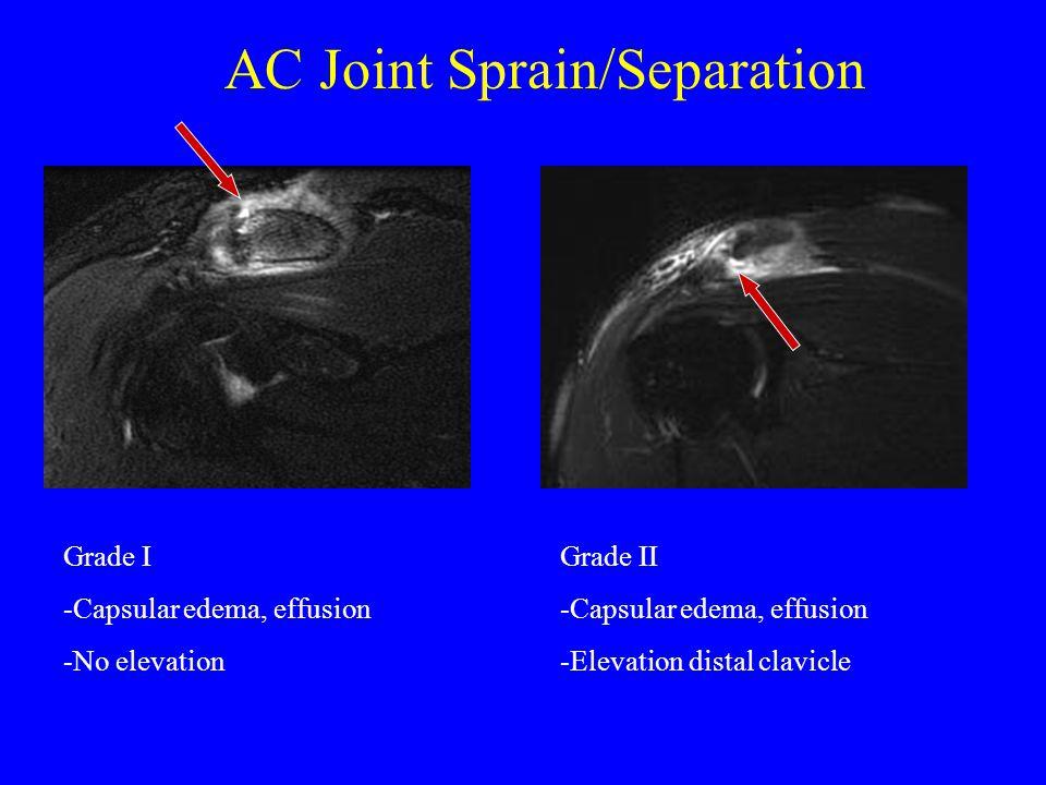 AC Joint Sprain/Separation