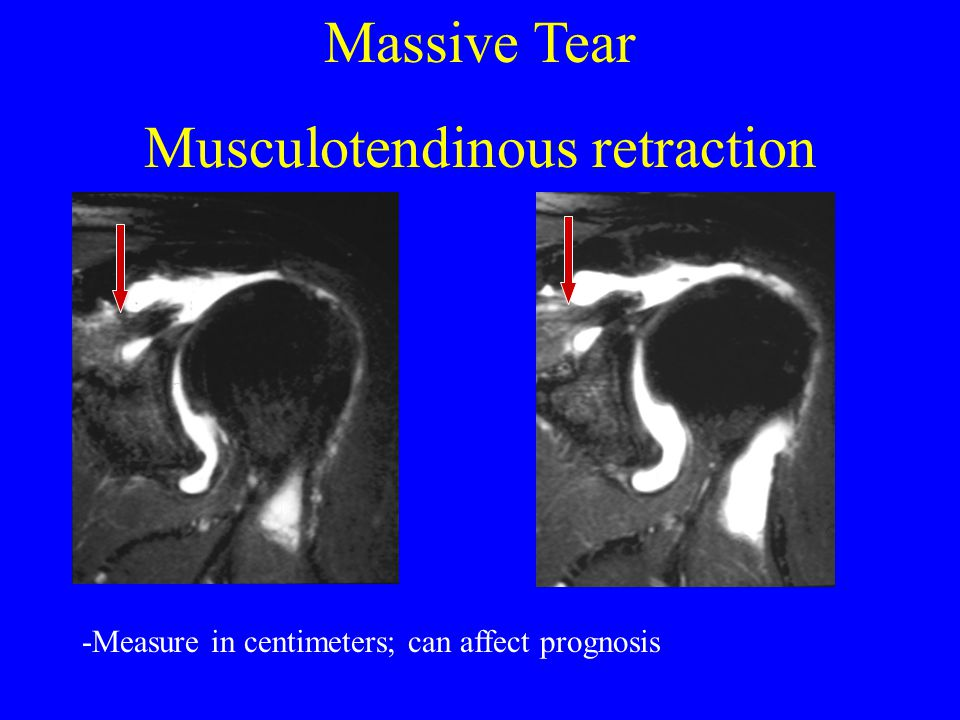 Musculotendinous retraction
