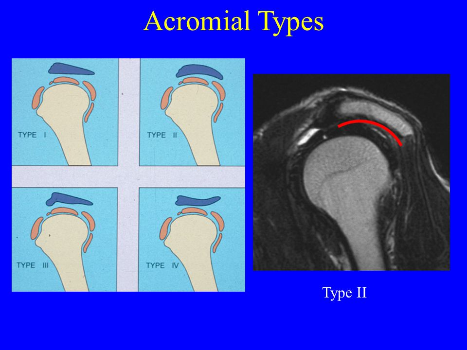 Acromial Types Type II