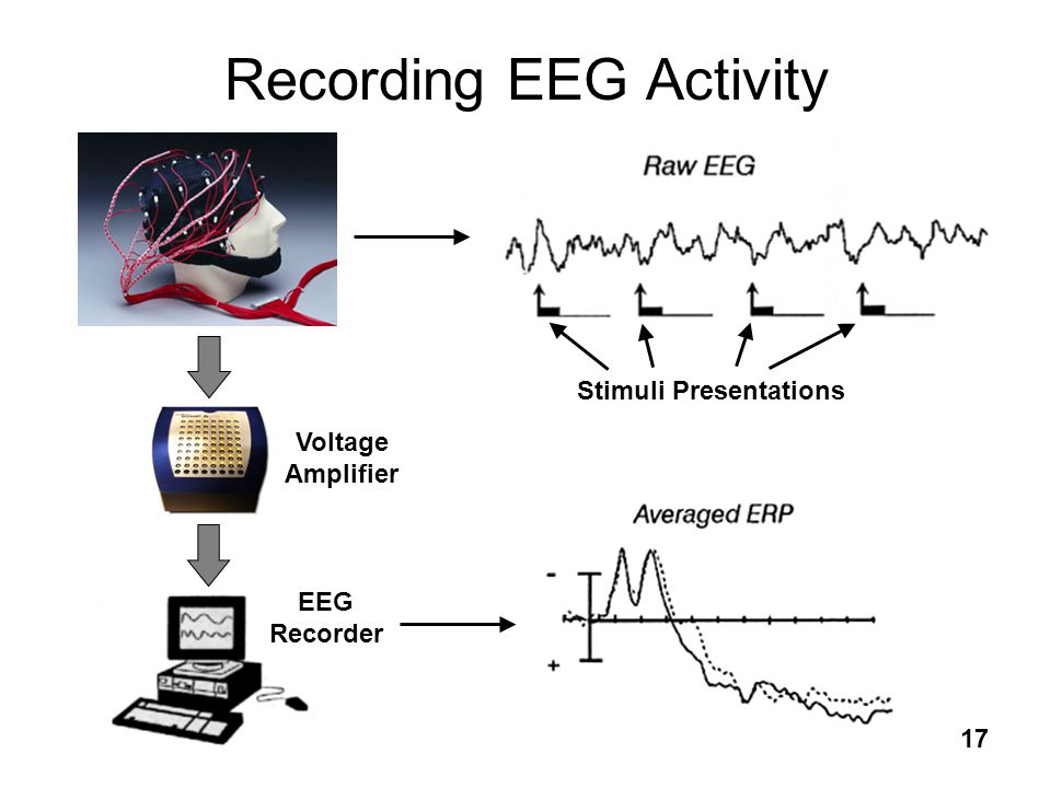 Recording EEG Activity