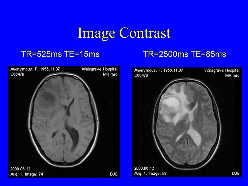 Image Contrast TR=525ms TE=15ms TR=2500ms TE=85ms
