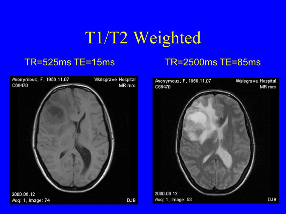 T1/T2 Weighted TR=525ms TE=15ms TR=2500ms TE=85ms