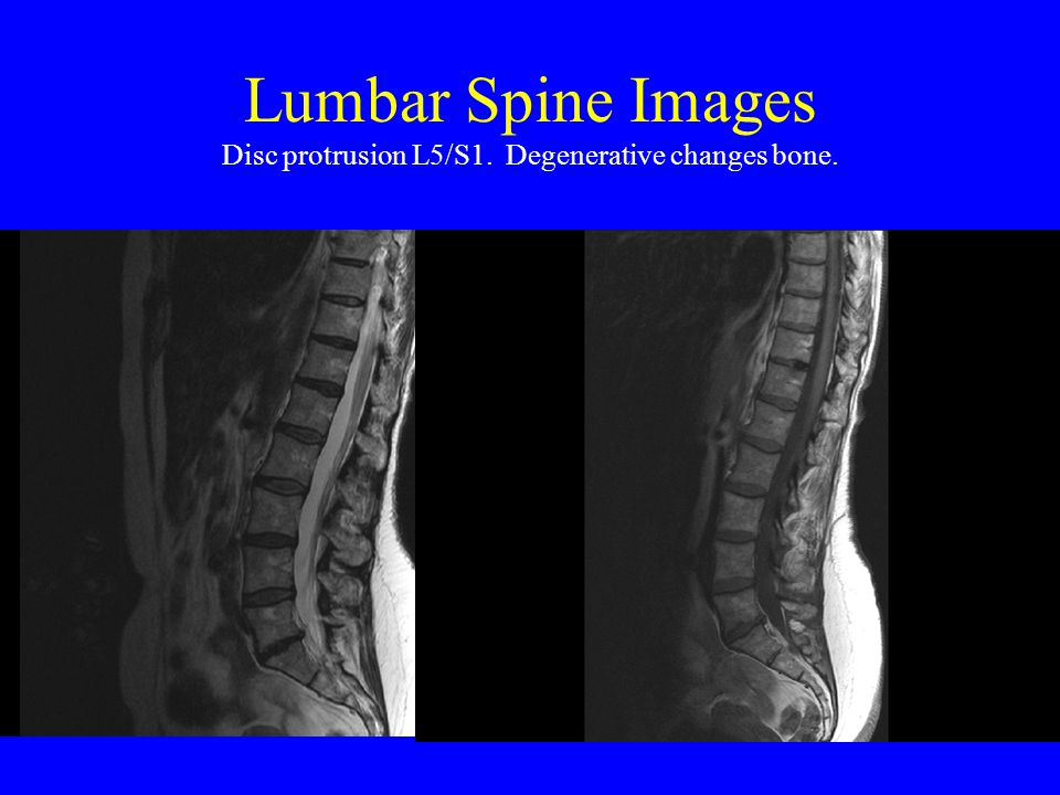 Lumbar Spine Images Disc protrusion L5/S1. Degenerative changes bone.