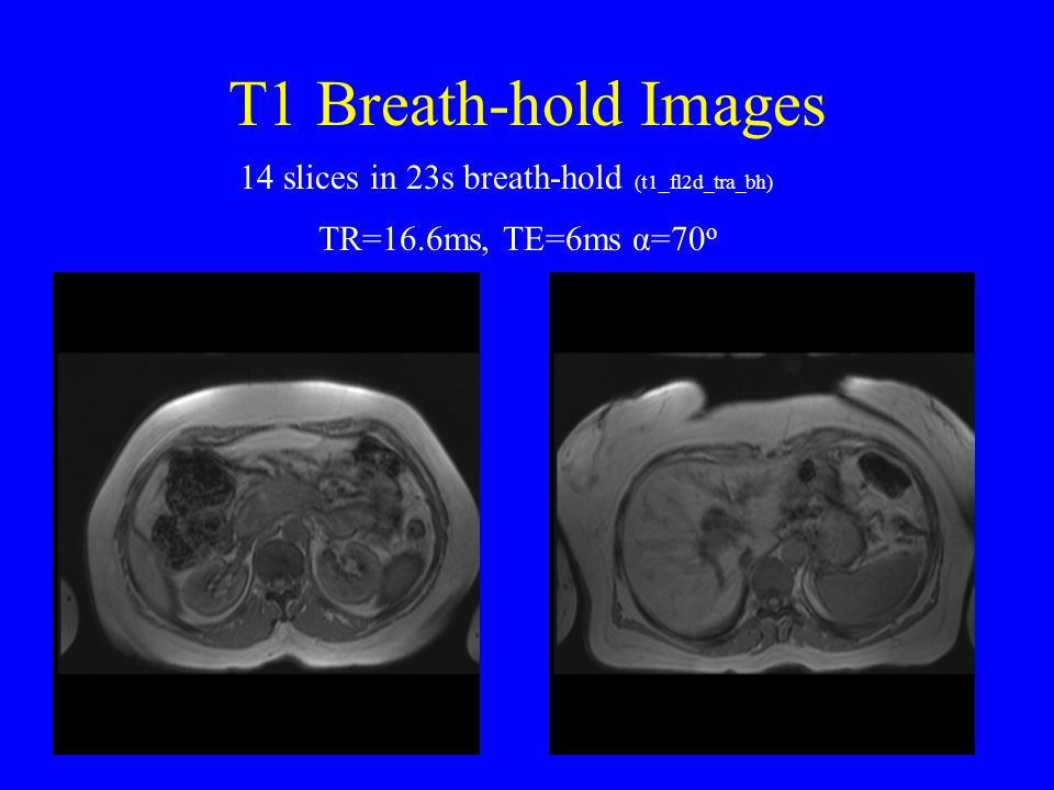 T1 Breath-hold Images 14 slices in 23s breath-hold (t1_fl2d_tra_bh)