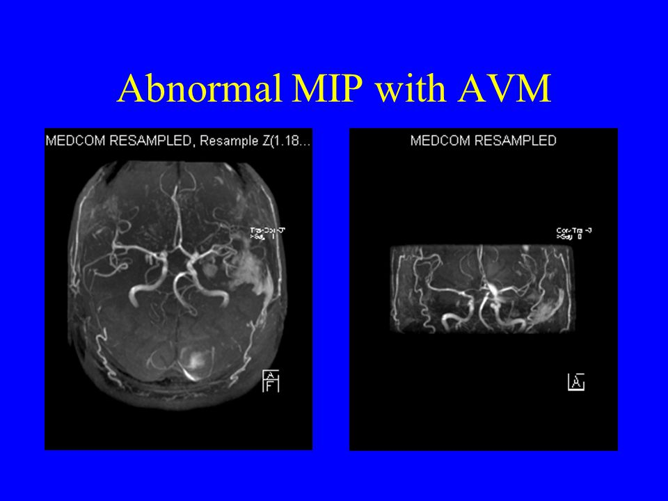 Abnormal MIP with AVM