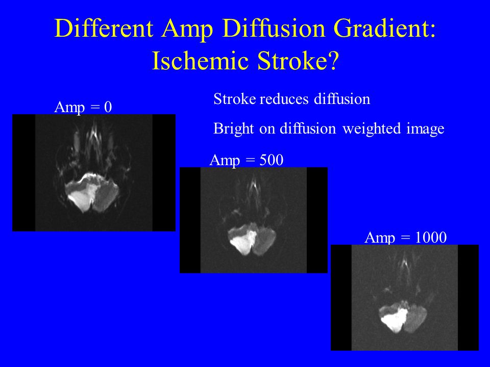 Different Amp Diffusion Gradient: Ischemic Stroke