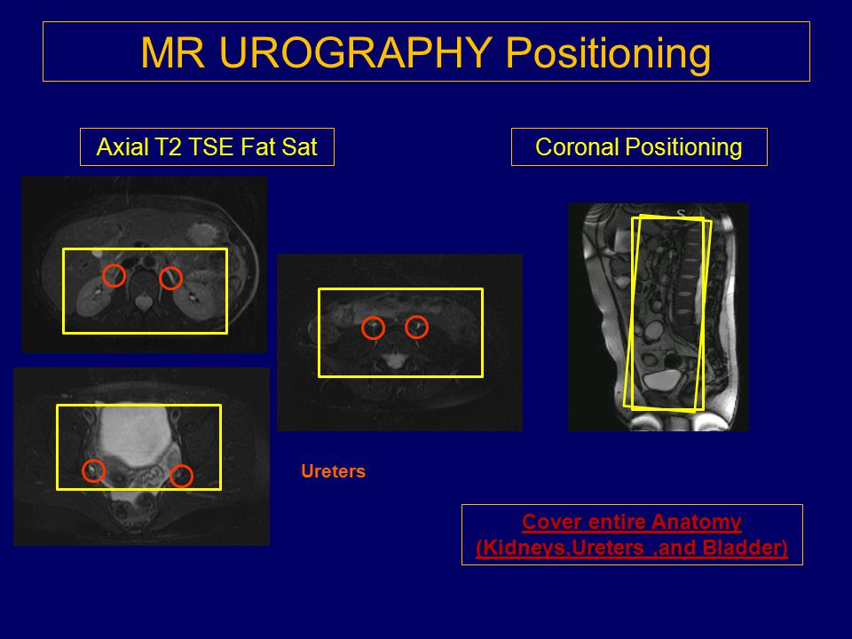 MR UROGRAPHY Positioning