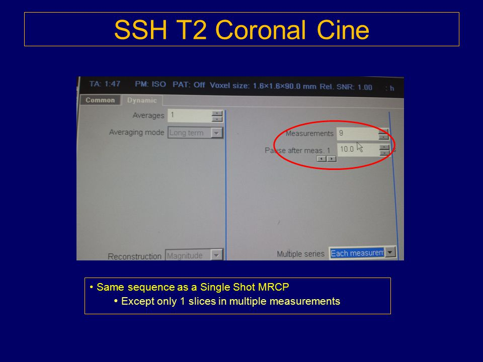SSH T2 Coronal Cine Except only 1 slices in multiple measurements
