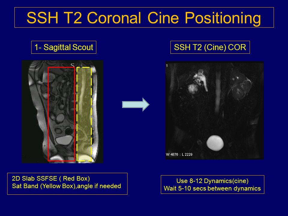 SSH T2 Coronal Cine Positioning