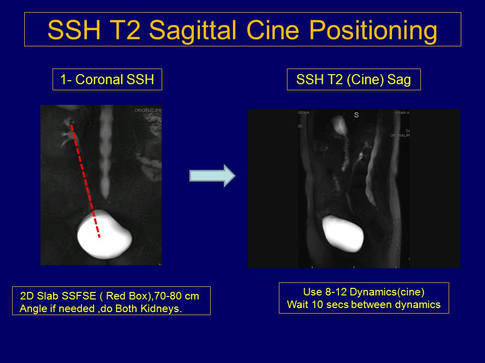 SSH T2 Sagittal Cine Positioning
