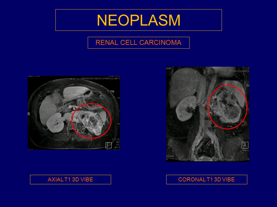 NEOPLASM RENAL CELL CARCINOMA AXIAL T1 3D VIBE CORONAL T1 3D VIBE