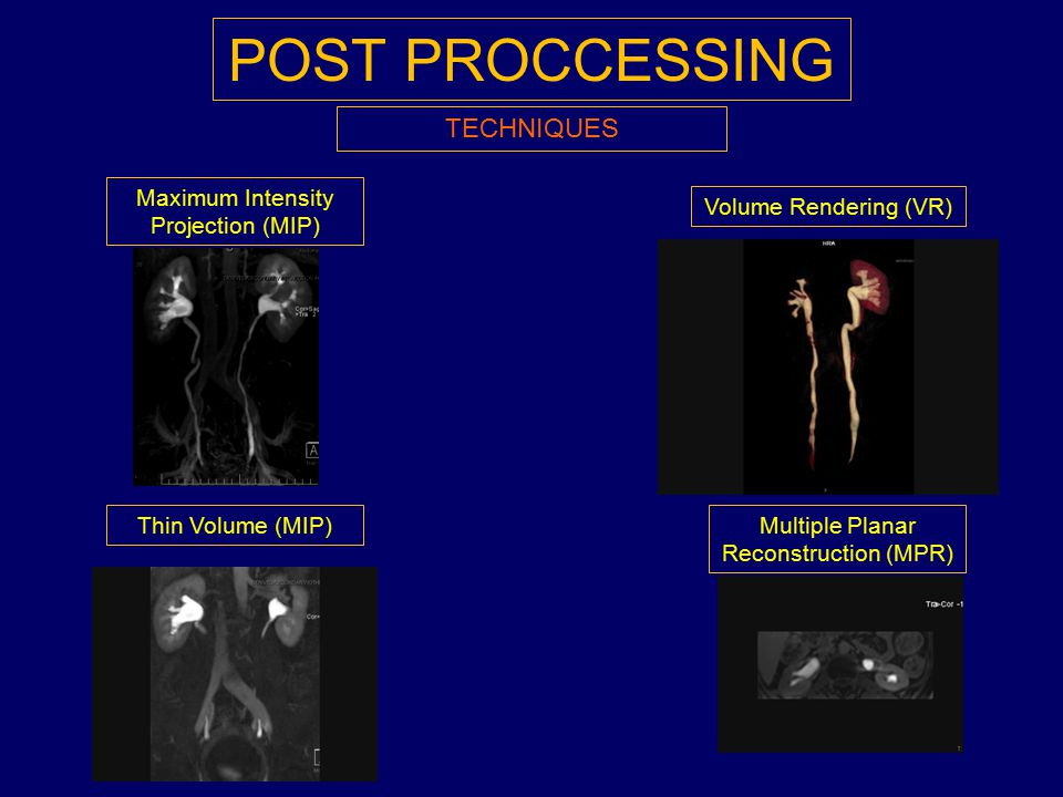 POST PROCCESSING TECHNIQUES Maximum Intensity Projection (MIP)