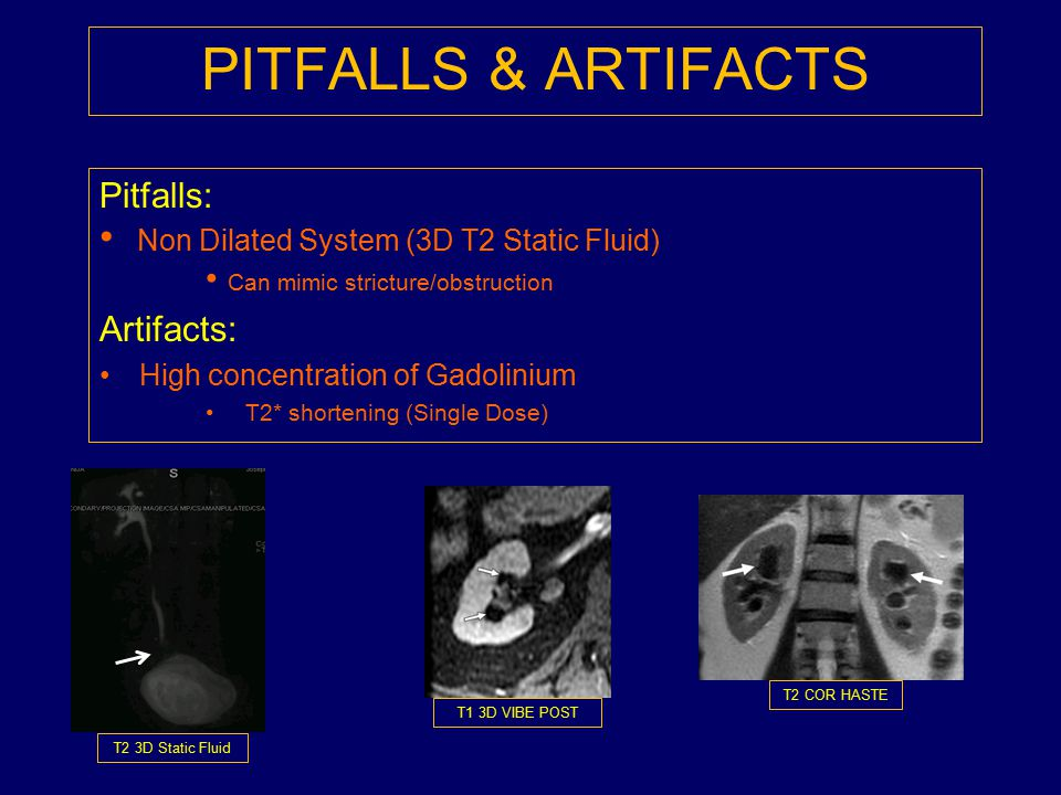 PITFALLS & ARTIFACTS Non Dilated System (3D T2 Static Fluid) Pitfalls: