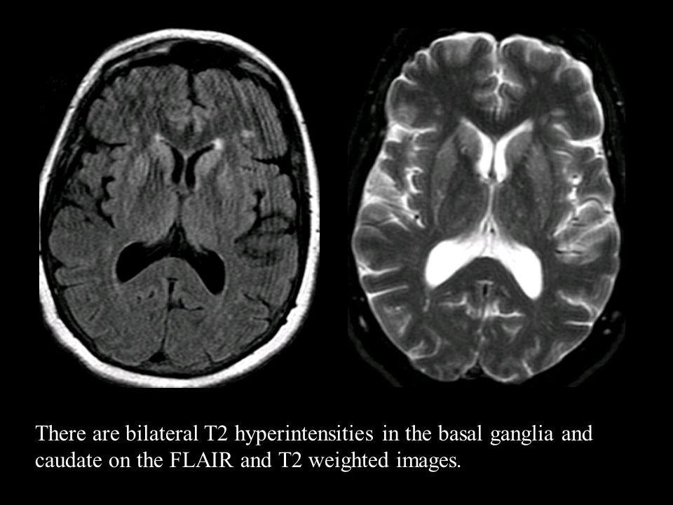 There are bilateral T2 hyperintensities in the basal ganglia and caudate on the FLAIR and T2 weighted images.