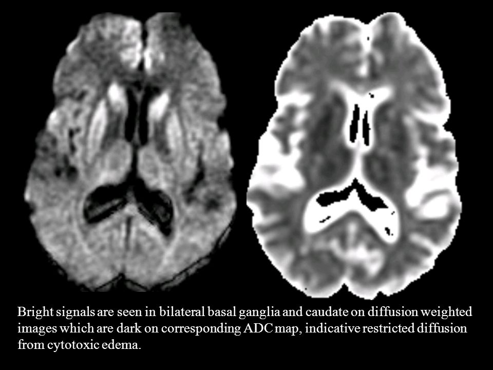 Bright signals are seen in bilateral basal ganglia and caudate on diffusion weighted images which are dark on corresponding ADC map, indicative restricted diffusion from cytotoxic edema.