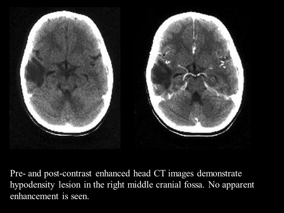 Pre- and post-contrast enhanced head CT images demonstrate hypodensity lesion in the right middle cranial fossa.