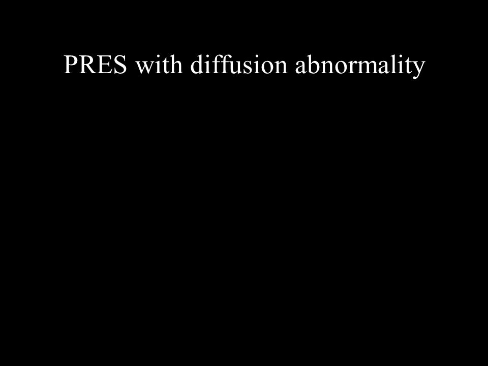PRES with diffusion abnormality