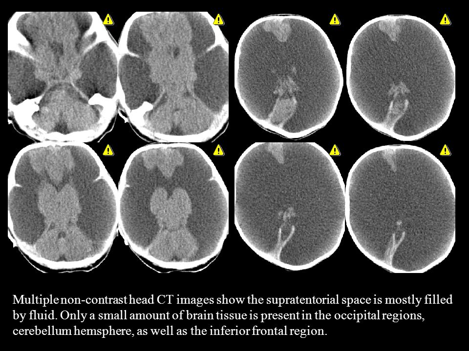 Multiple non-contrast head CT images show the supratentorial space is mostly filled by fluid.