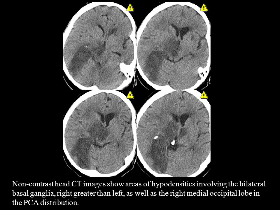 Non-contrast head CT images show areas of hypodensities involving the bilateral basal ganglia, right greater than left, as well as the right medial occipital lobe in the PCA distribution.
