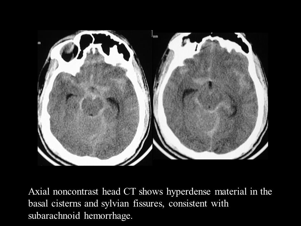 Axial noncontrast head CT shows hyperdense material in the basal cisterns and sylvian fissures, consistent with subarachnoid hemorrhage.