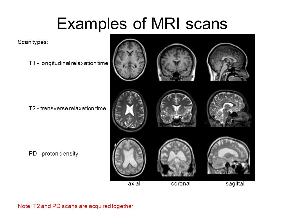 Examples of MRI scans