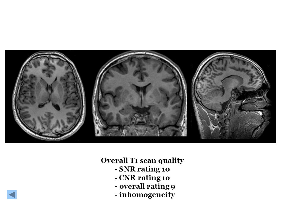Overall T1 scan quality - SNR rating 10 - CNR rating 1o - overall rating 9 - inhomogeneity