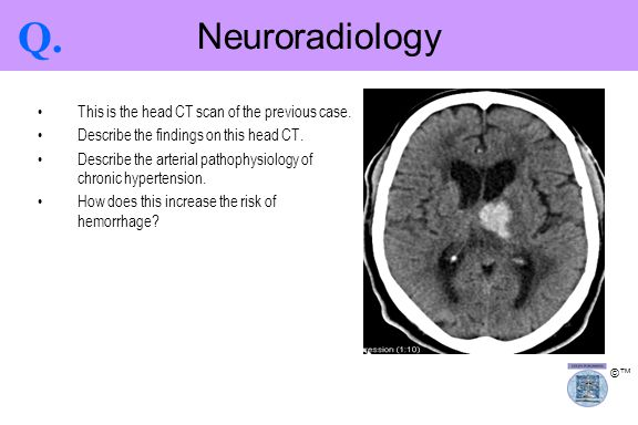 Q. Neuroradiology This is the head CT scan of the previous case.