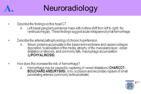 A. Neuroradiology Describe the findings on this head CT.