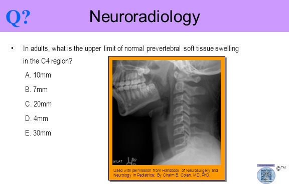 Q Neuroradiology. In adults, what is the upper limit of normal prevertebral soft tissue swelling in the C4 region