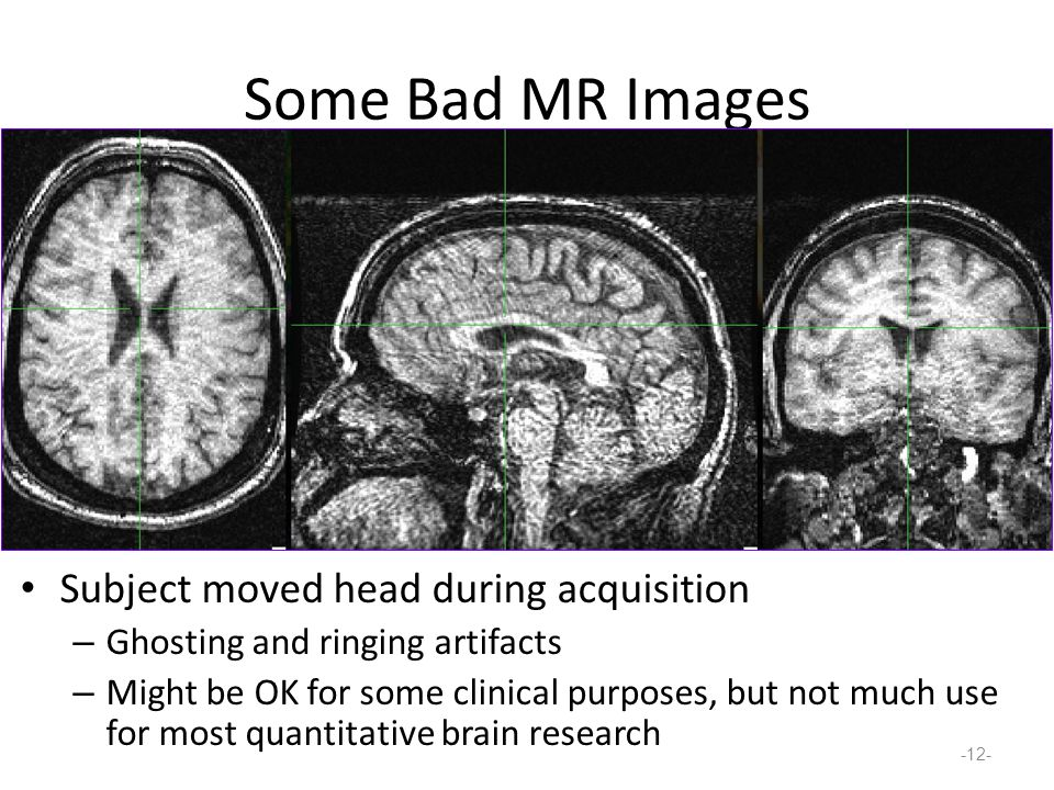 Some Bad MR Images Subject moved head during acquisition