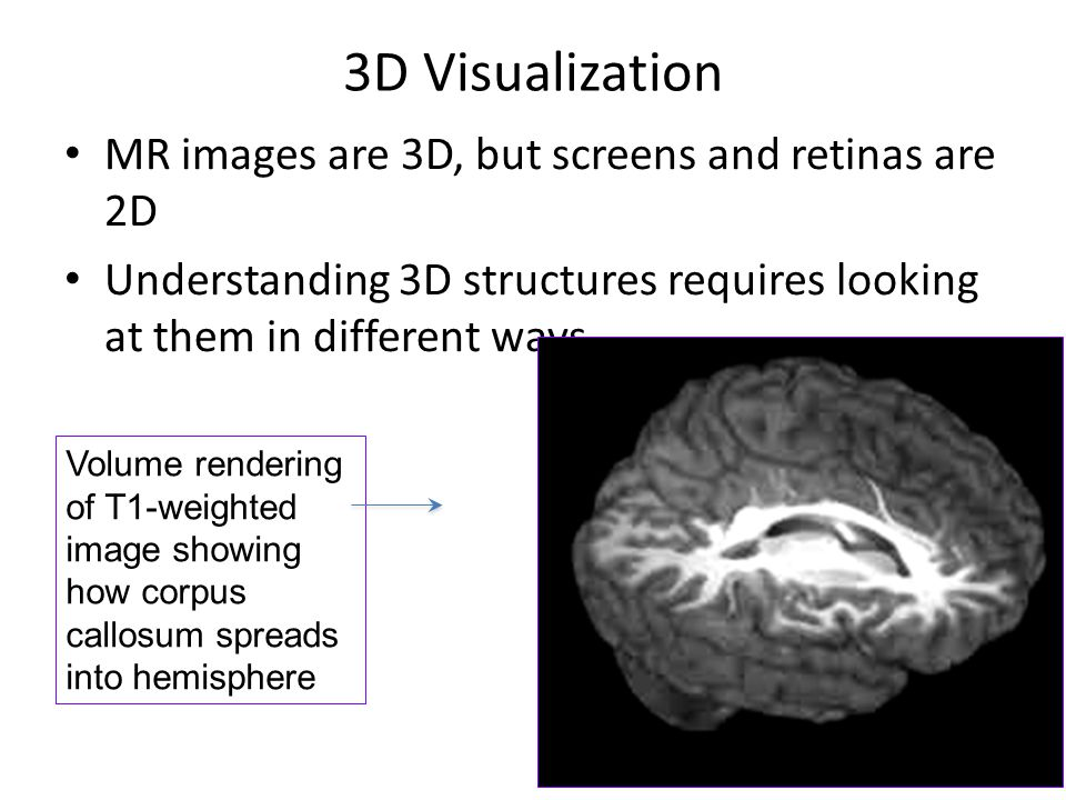 3D Visualization MR images are 3D, but screens and retinas are 2D