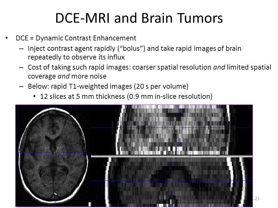 DCE-MRI and Brain Tumors