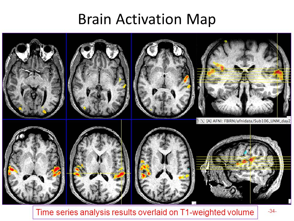Brain Activation Map Time series analysis results overlaid on T1-weighted volume