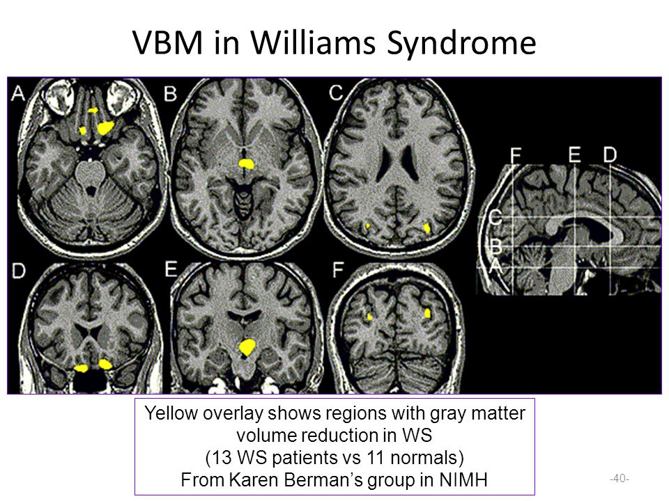 Williams syndrome and brain organization essay