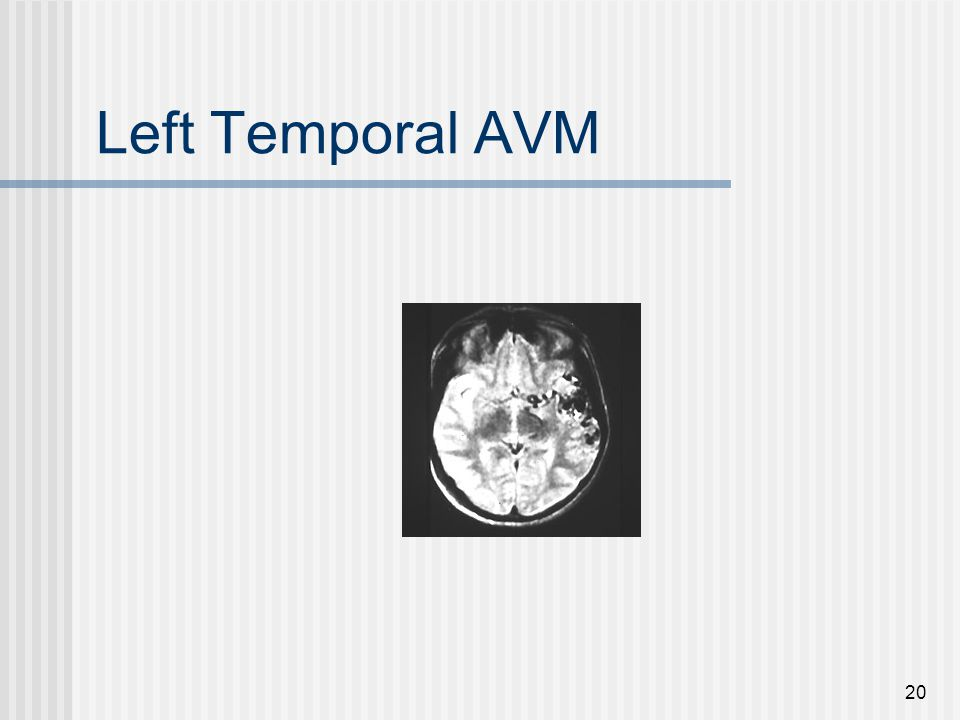 Left Temporal AVM 20