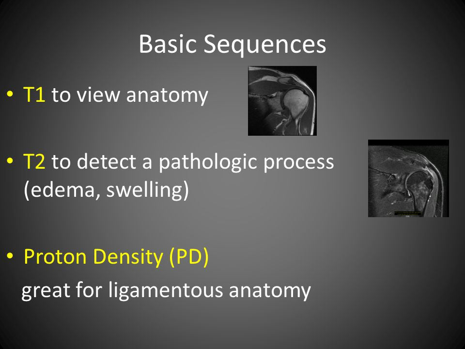 Basic Sequences T1 to view anatomy