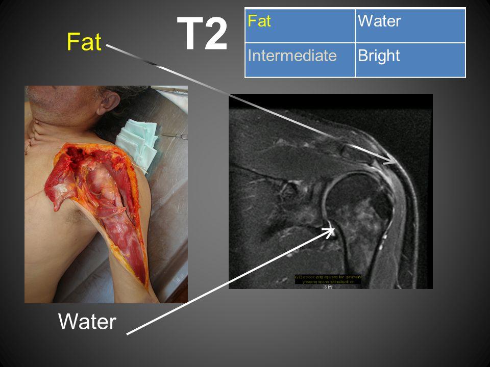 T2 Fat Water Fat Water Intermediate Bright