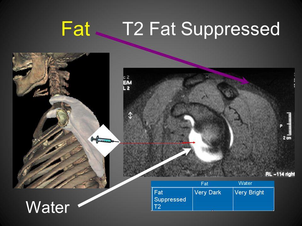 Fat T2 Fat Suppressed Water