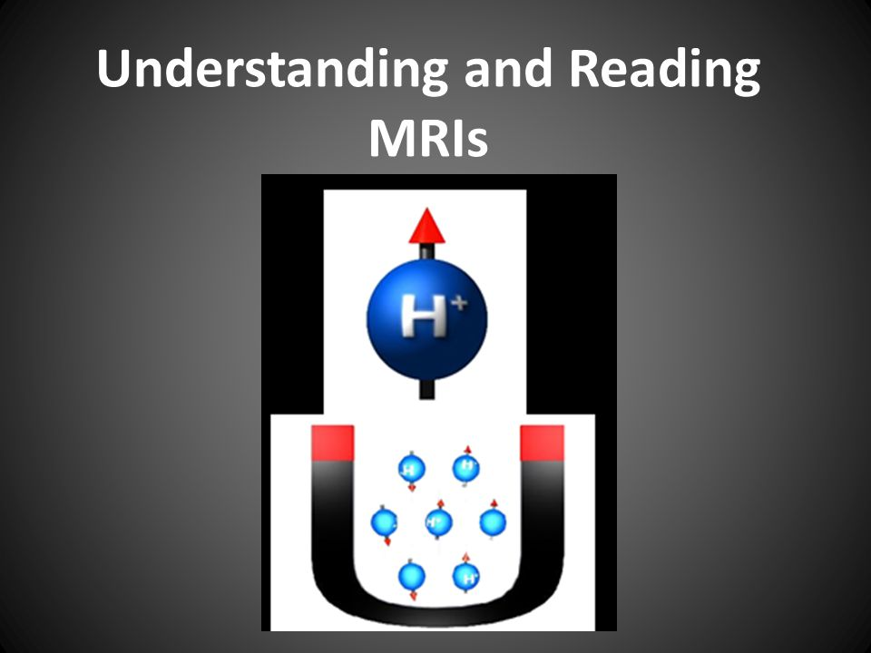 Understanding and Reading MRIs