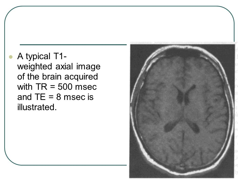 A typical T1-weighted axial image of the brain acquired with TR = 500 msec and TE = 8 msec is illustrated.